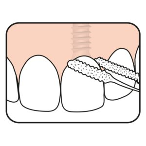 Bridge & Implant Floss illustration