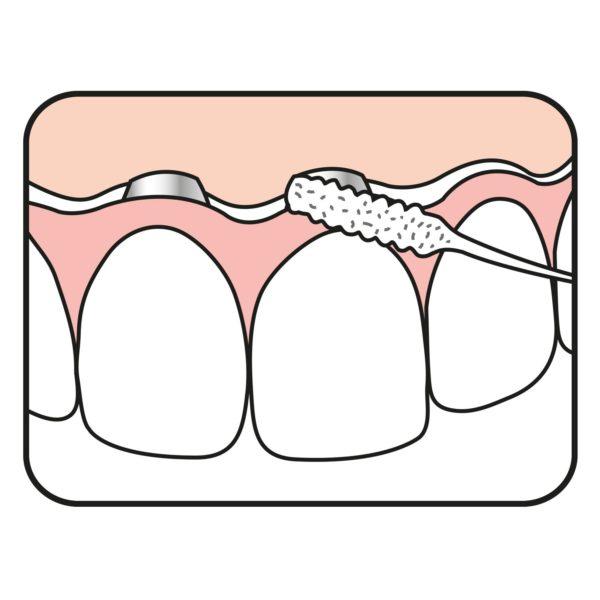 Bridge & Implant Floss illustration